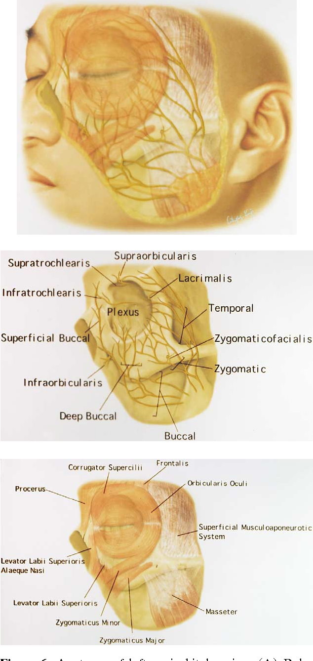 Figure 6 From Facial Nerve Anatomy In Eyelids And Periorbit