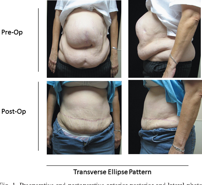 The partial underlay preperitoneal with panniculectomy repair for