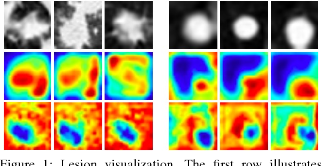 Figure 1 for Soft Activation Mapping of Lung Nodules in Low-Dose CT images
