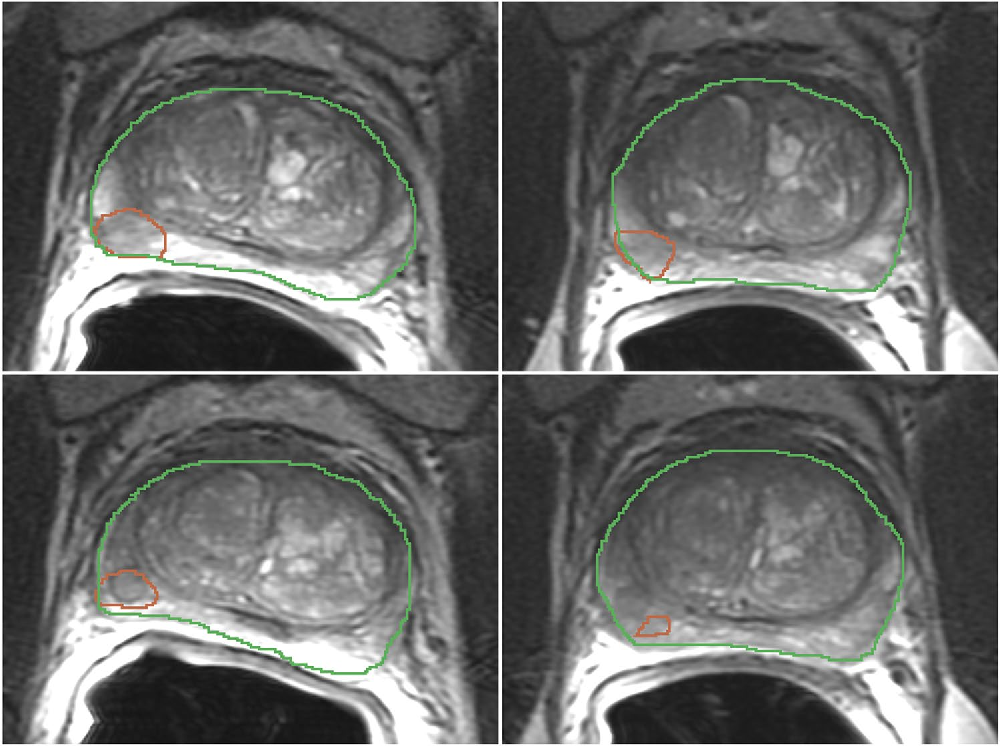 Figure 1 for Repeatability of Multiparametric Prostate MRI Radiomics Features
