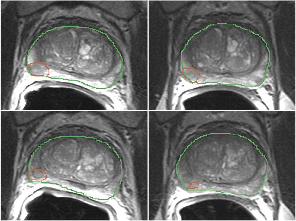 Figure 1 for Repeatability of Multiparametric Prostate MRI Radiomics Features