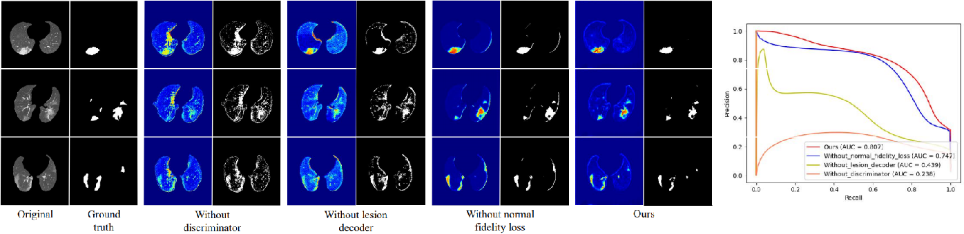 Figure 4 for Towards Unbiased COVID-19 Lesion Localisation and Segmentation via Weakly Supervised Learning