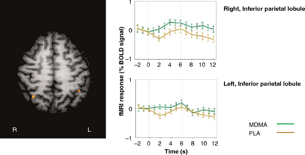 Figure 3 Transversal section of the brain showing significant MDMA effects during No go trials in two brain areas. Event-related BOLD responses averaged over No go trials during MDMA and placebo are given in the right panels for each brain area.