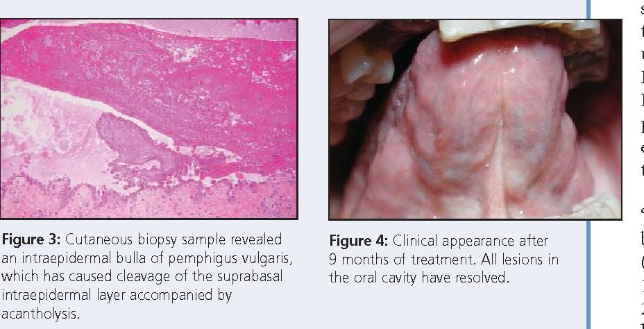 Pemphigus Vulgaris Oral