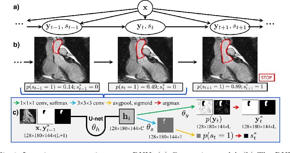Figure 1 for Iterative Segmentation from Limited Training Data: Applications to Congenital Heart Disease