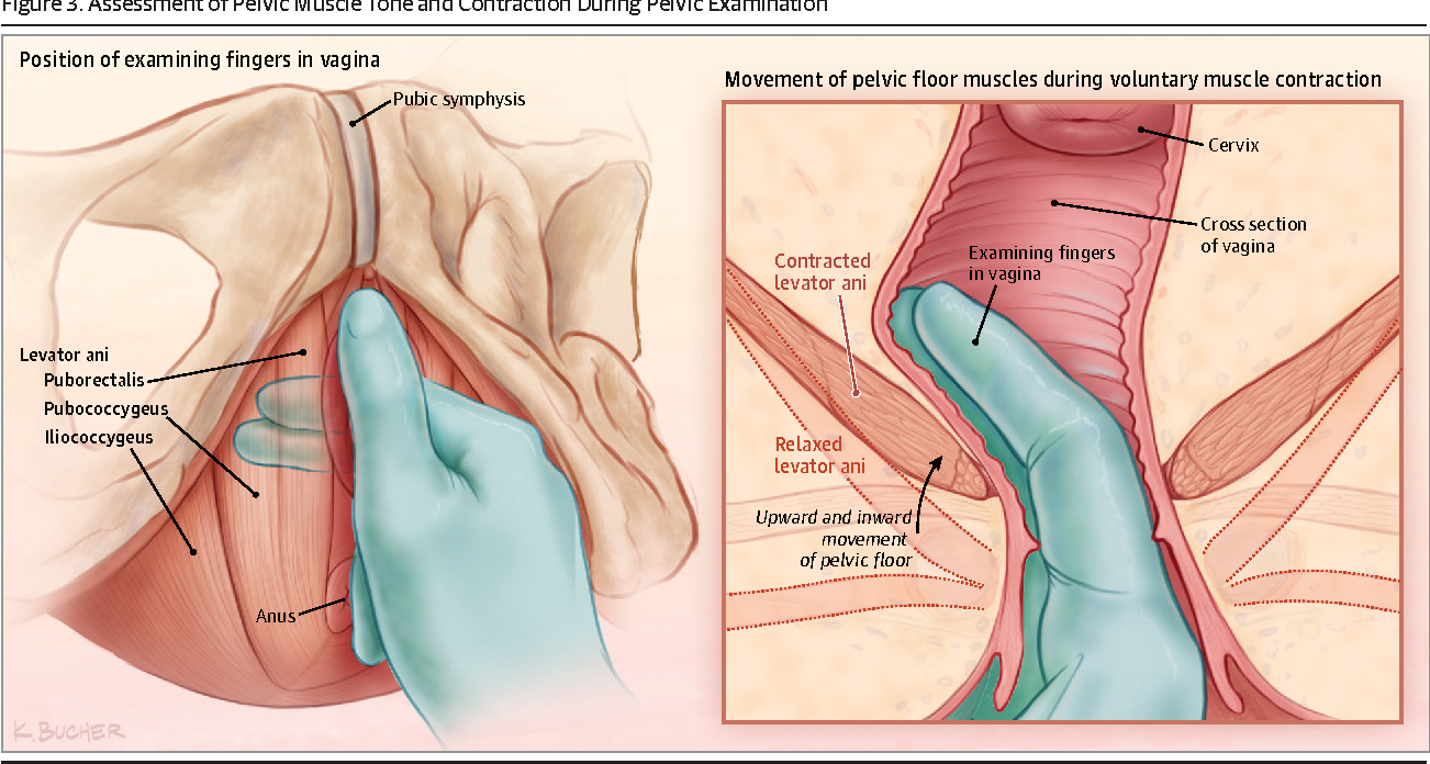 Figure 3 From Urinary Incontinence In Women A Review Semantic