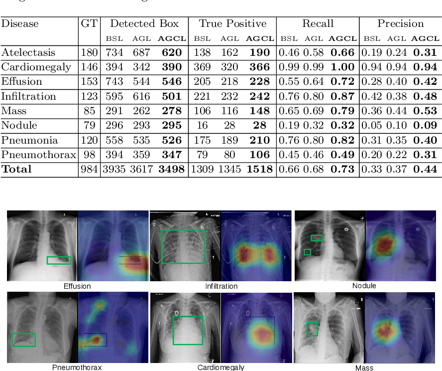 Figure 4 for Attention-Guided Curriculum Learning for Weakly Supervised Classification and Localization of Thoracic Diseases on Chest Radiographs