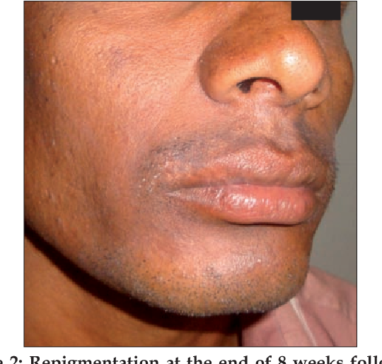 Single-Hair Follicular Unit Transplant for Stable Vitiligo