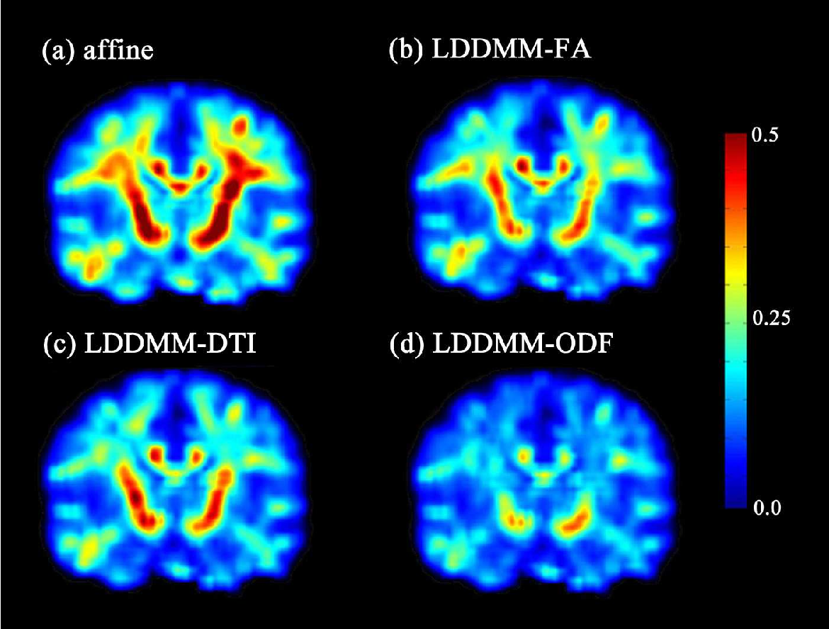 Figure 4 for Diffeomorphic Metric Mapping of High Angular Resolution Diffusion Imaging based on Riemannian Structure of Orientation Distribution Functions