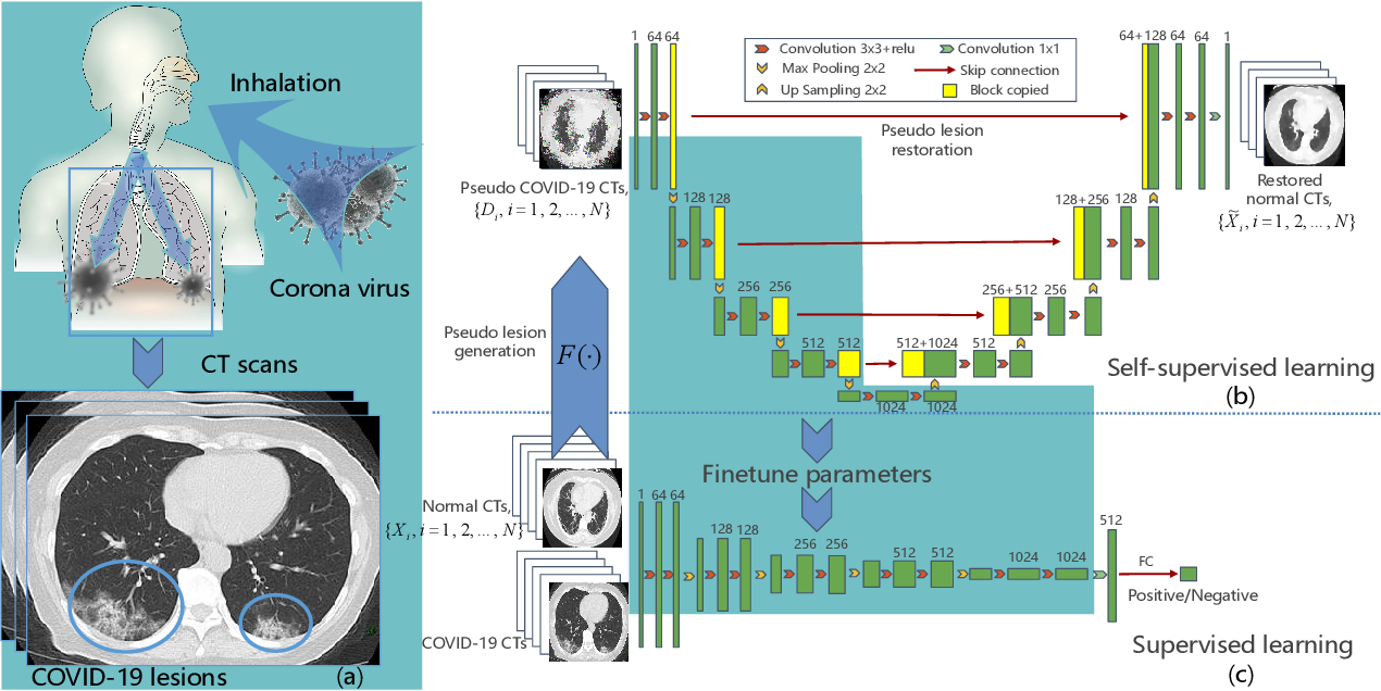 Figure 4 for Learning from Pseudo Lesion: A Self-supervised Framework for COVID-19 Diagnosis