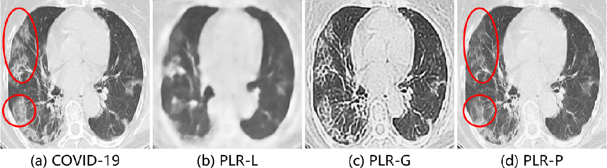 Figure 2 for Learning from Pseudo Lesion: A Self-supervised Framework for COVID-19 Diagnosis
