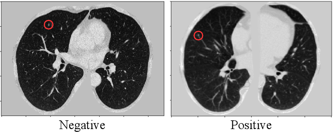 Figure 1 for 3D Aggregated Faster R-CNN for General Lesion Detection