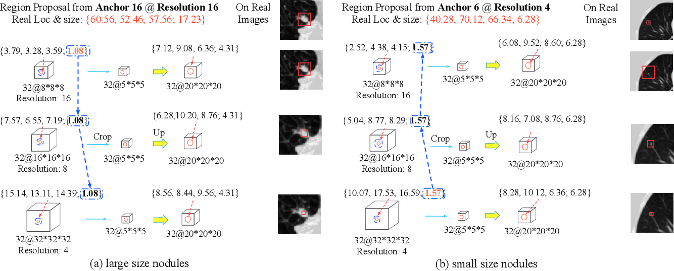 Figure 3 for 3D Aggregated Faster R-CNN for General Lesion Detection