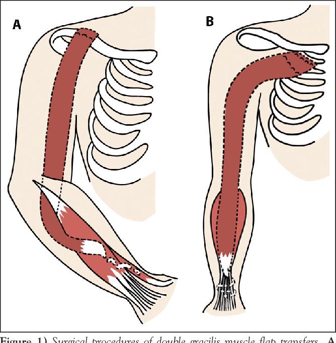 Double Free Gracilis Muscle Transfer After Complete Brachial Plexus