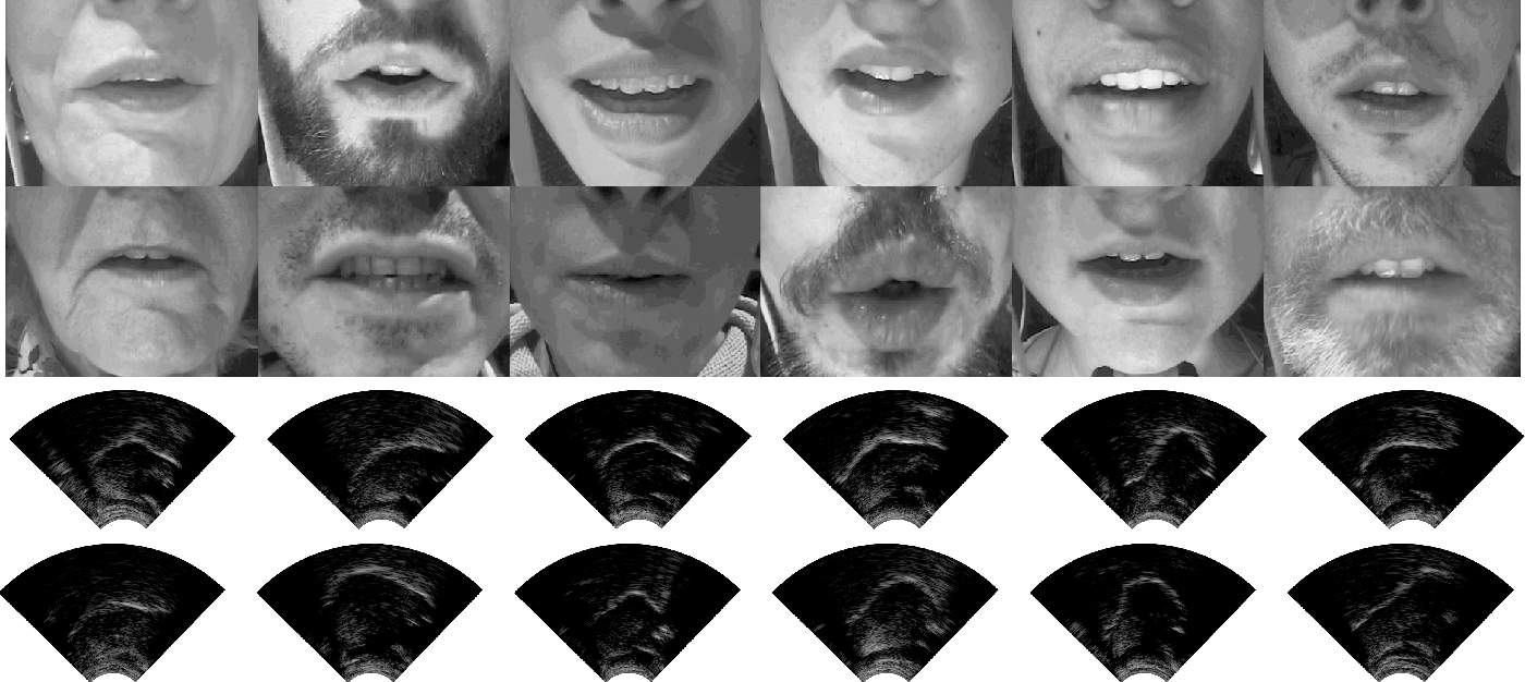 Figure 4 for TaL: a synchronised multi-speaker corpus of ultrasound tongue imaging, audio, and lip videos