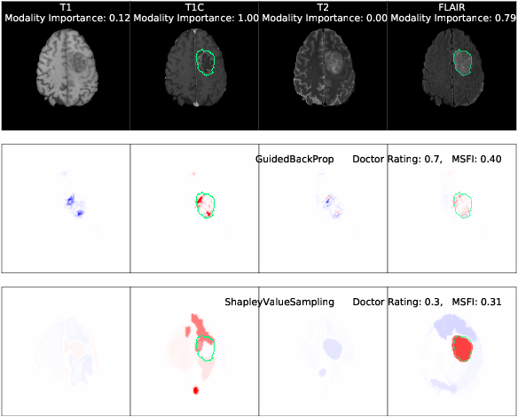 Figure 1 for One Map Does Not Fit All: Evaluating Saliency Map Explanation on Multi-Modal Medical Images