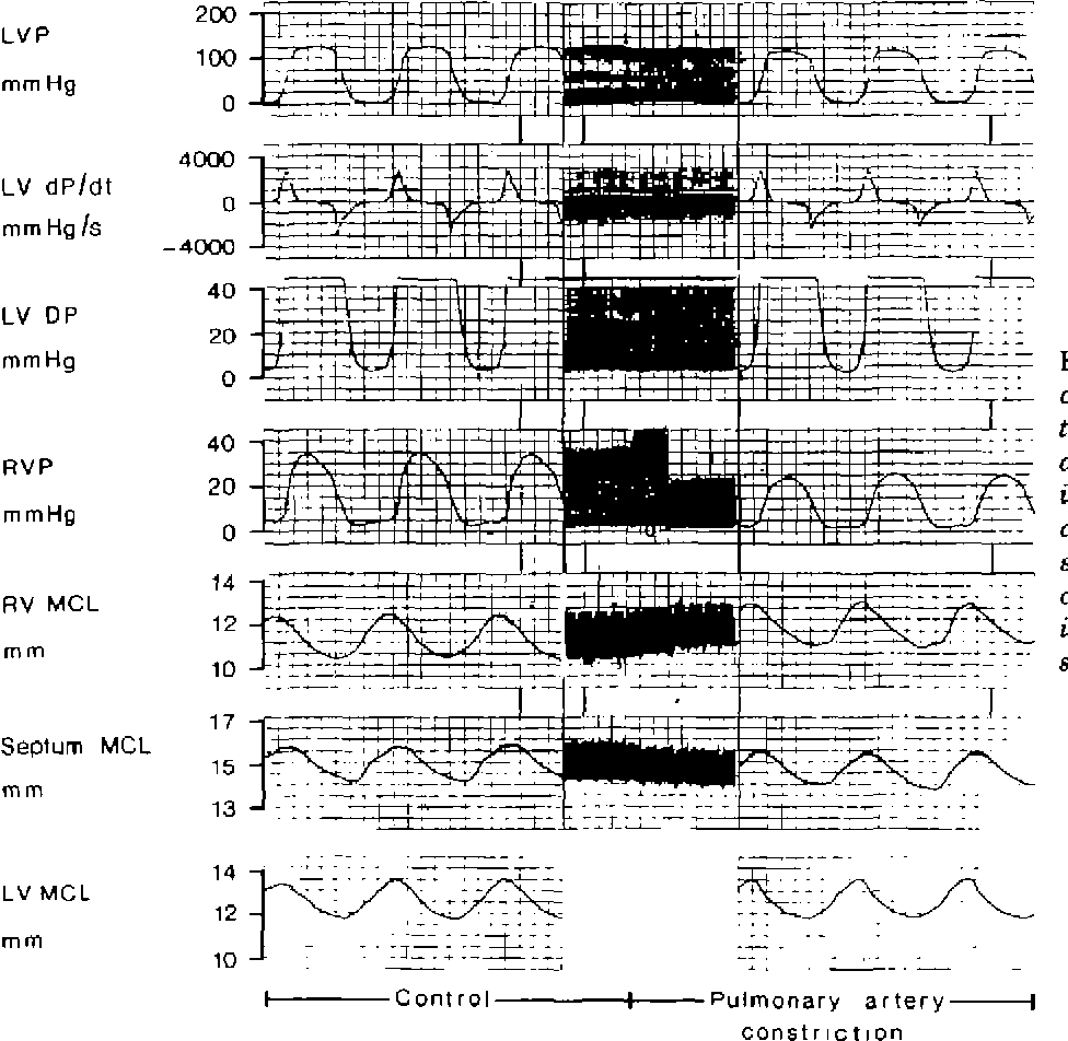 Figure 5 From Myocardial Function Of The Interventricular Septum