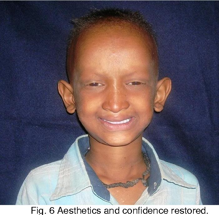 PDF] Hypohidrotic Ectodermal Dysplasia: A Case Report