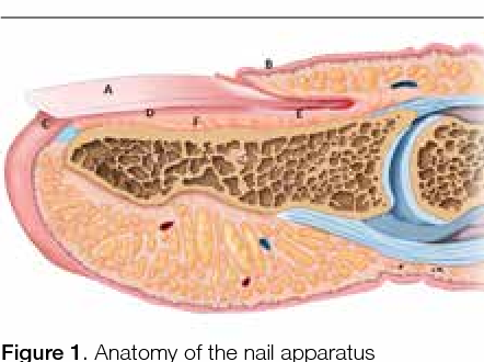 Pigmented Lesions Of The Nail Bed Clinical Assessment And Biopsy