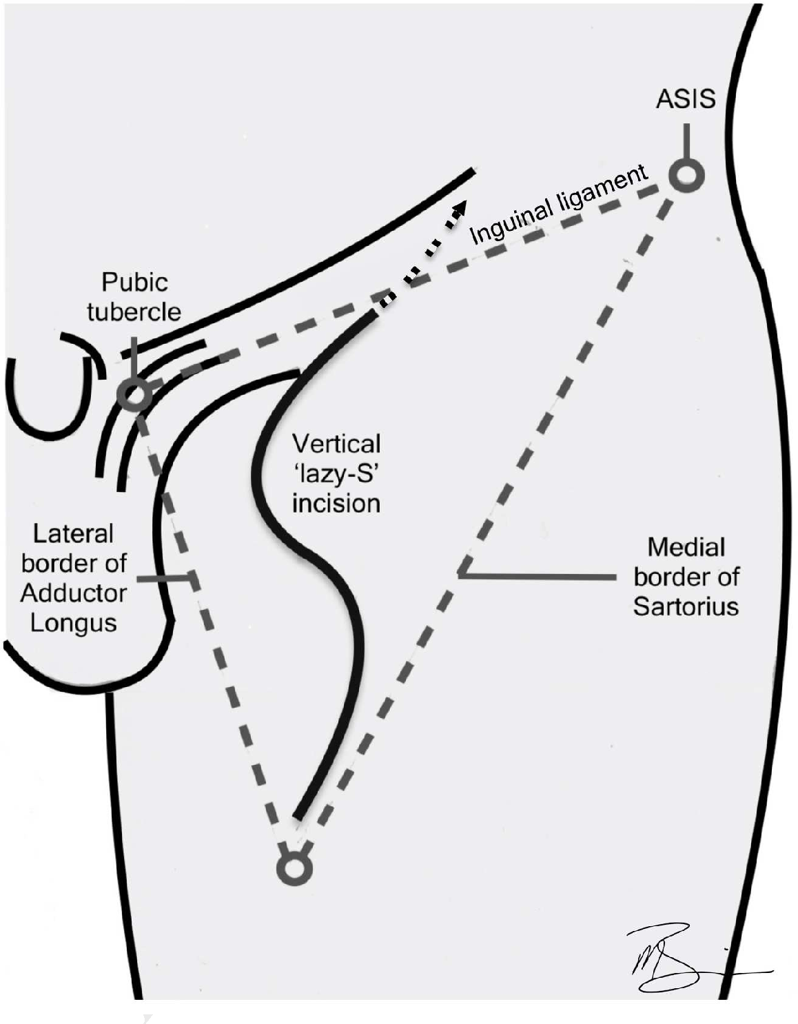 Figure 2 From Penile Cancer Contemporary Lymph Node Management