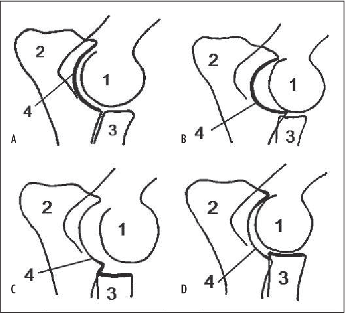 Figure 1 From Review Of The Literature Elbow Incongruity In The Dog