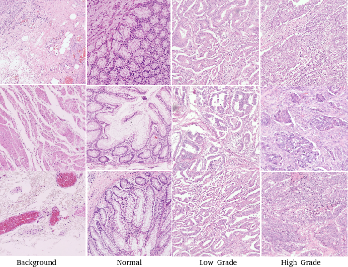 Figure 3 for Deep Multi-Resolution Dictionary Learning for Histopathology Image Analysis
