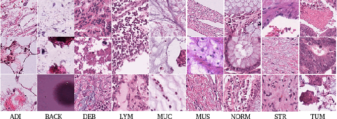 Figure 4 for Deep Multi-Resolution Dictionary Learning for Histopathology Image Analysis