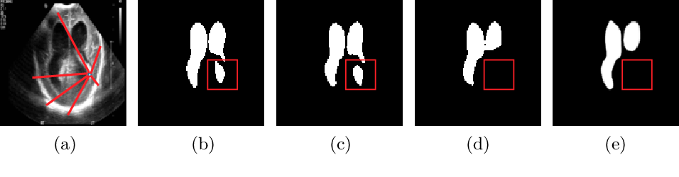 Figure 1 for Medical Transformer: Gated Axial-Attention for Medical Image Segmentation