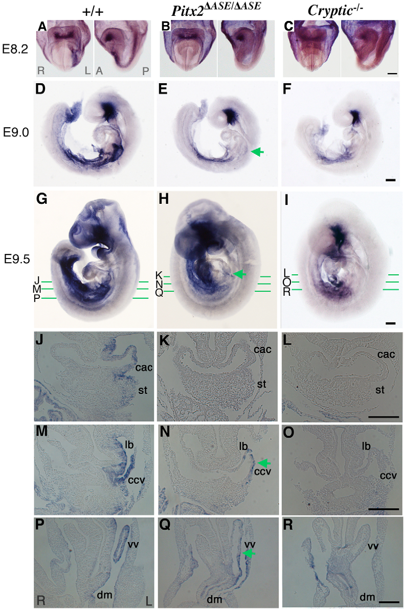 Fig. 5. Loss of most LR asymmetric expression domains of Pitx2 in Pitx2 ASE/ ASE embryos. Expression of Pitx2 was examined in wild-type (A,D,G,J,M,P), Pitx2 ASE/ ASE (B,E,H,K,N,Q) or cryptic–/– (C,F,I,L,O,R) embryos at E8.2 (A-C), E9.0 (D-F) or E9.5 (G-R) by wholemount in-situ hybridization. The whole-mount embryos shown in G-I were sectioned transversely at the indicated planes and the sections are shown in J-R. Expression of Pitx2 in left LPM at E8.2 was lost in Pitx2 ASE/ ASE and cryptic–/– embryos. Asymmetric Pitx2 expression was lost in Pitx2 ASE/ ASE embryos at E9.0, with the exception of a reduced level of expression remaining in the common cardinal vein and vitelline vein (green arrow in E). Asymmetric Pitx2 expression was completely absent from cryptic–/– embryos at E9.0. Asymmetric Pitx2 expression remained apparent at a reduced level in the common cardinal vein and vitelline vein of Pitx2 ASE/ ASE embryos at E9.5 (green arrows in H, N and Q) but was absent from cryptic–/– embryos at this time. Scale bars: 200 m. cac, common atrial chamber; ccv, common cardinal vein; dm, gut dorsal mesentery; lb, lung bud; st, septum transversum; vv, vitelline vein.