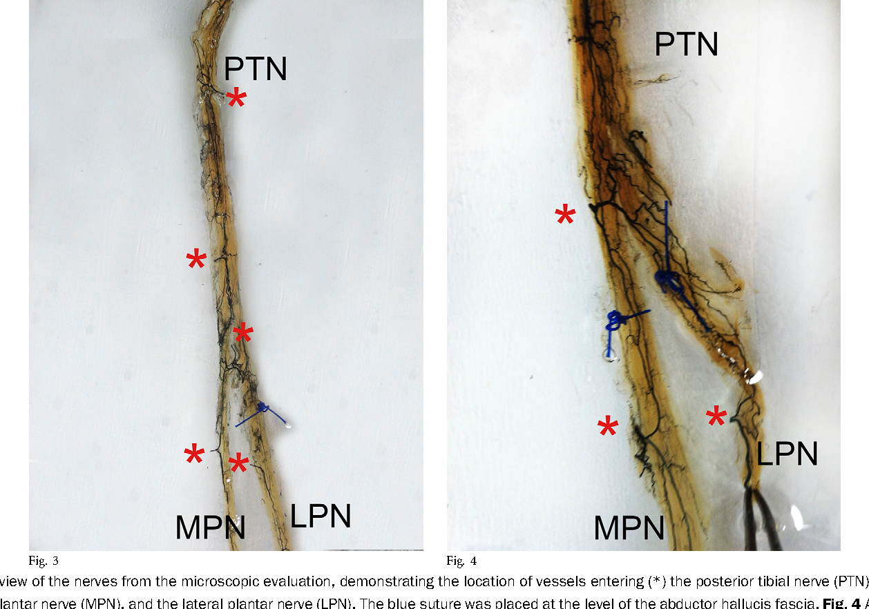 Arterial Anatomy Of The Posterior Tibial Nerve In The Tarsal Tunnel