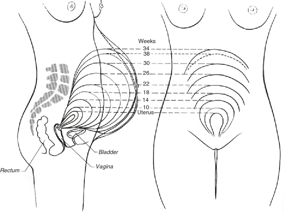 Figure 6 10 From Acute Abdomen During Pregnancy