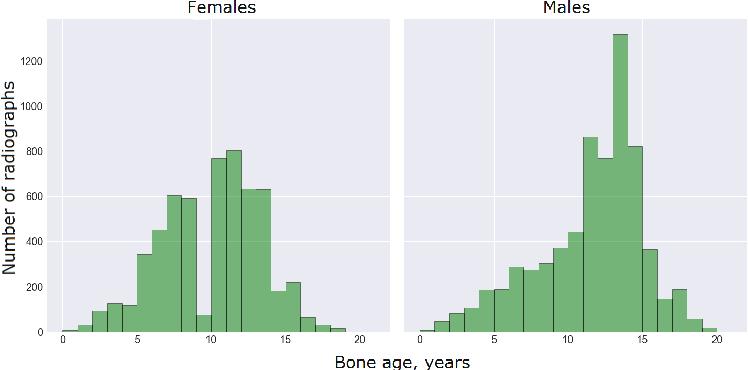 Figure 2 for Pediatric Bone Age Assessment Using Deep Convolutional Neural Networks