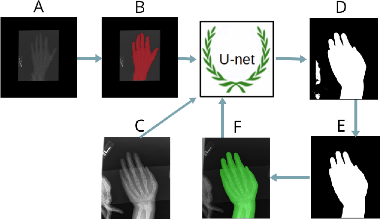 Figure 3 for Pediatric Bone Age Assessment Using Deep Convolutional Neural Networks