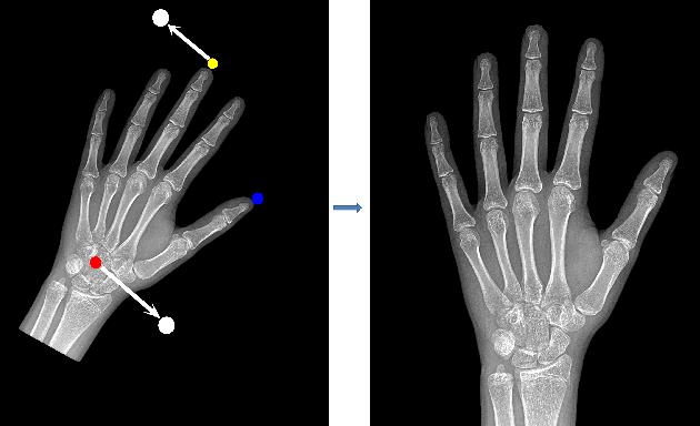 Figure 4 for Pediatric Bone Age Assessment Using Deep Convolutional Neural Networks