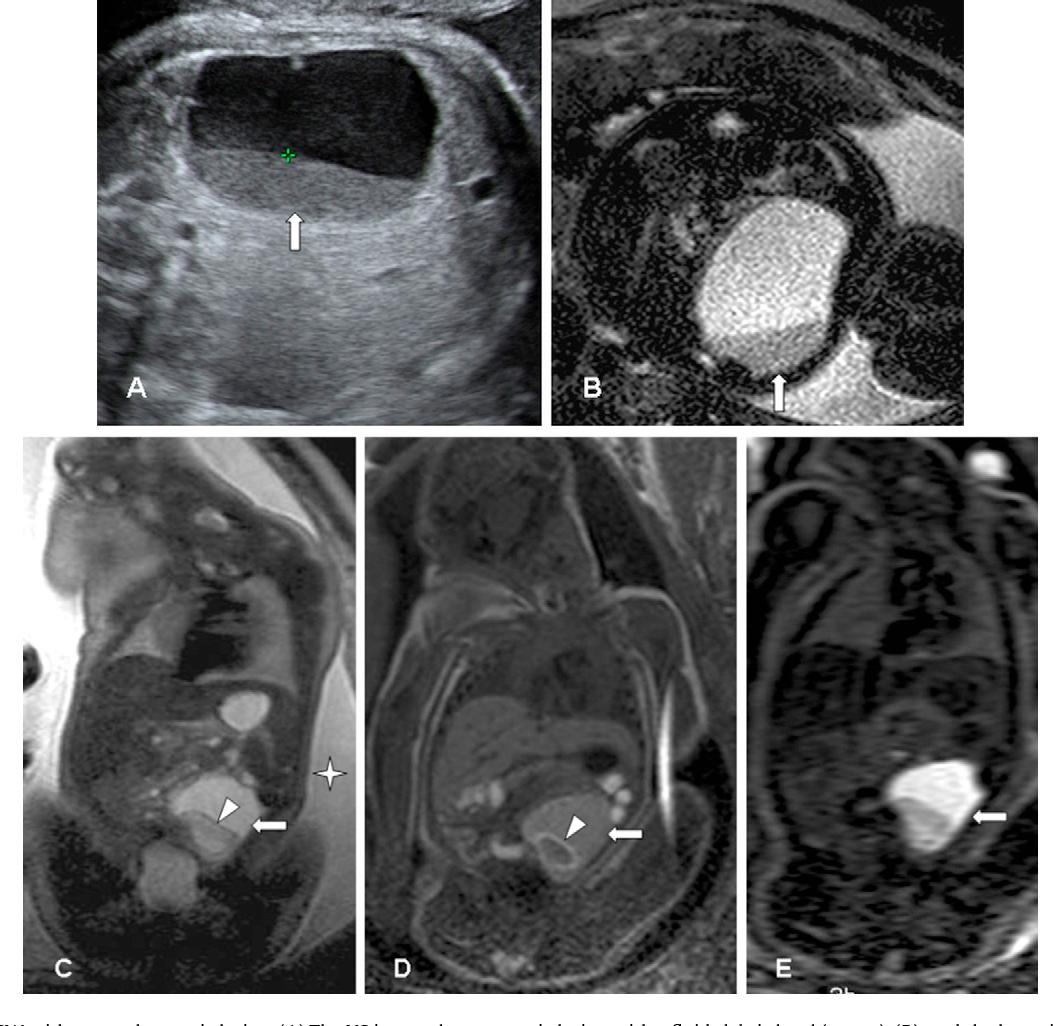 Ovarian cysts on prenatal MRI  - Semantic Scholar