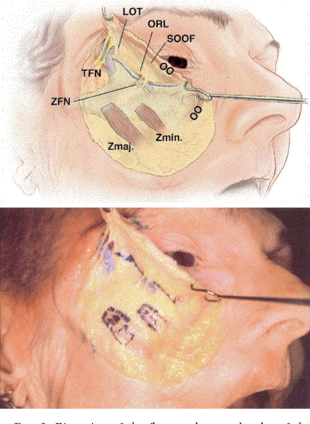 Figure 2 from Surgical anatomy of the midcheek and malar mounds ...