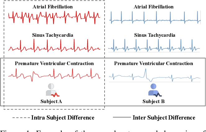 Figure 1 for Intra-Inter Subject Self-supervised Learning for Multivariate Cardiac Signals