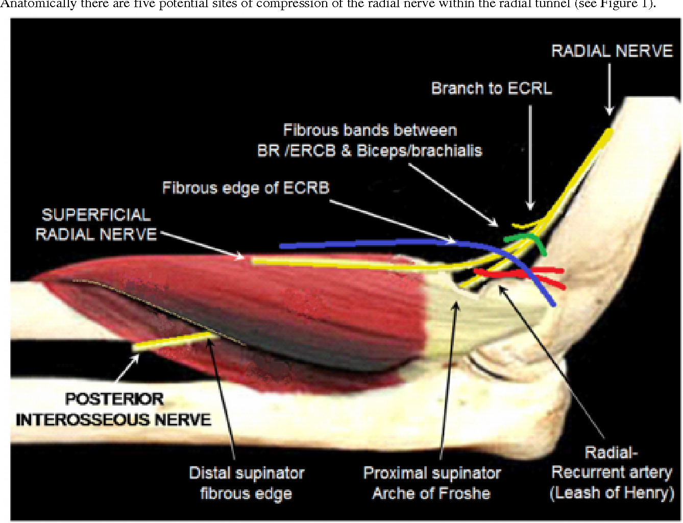Compression neuropathies of the radial nerve - Semantic Scholar