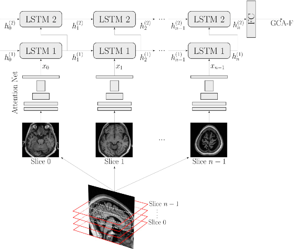 Figure 4 for AVRA: Automatic Visual Ratings of Atrophy from MRI images using Recurrent Convolutional Neural Networks