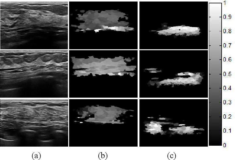 Figure 2 for Tumor Saliency Estimation for Breast Ultrasound Images via Breast Anatomy Modeling
