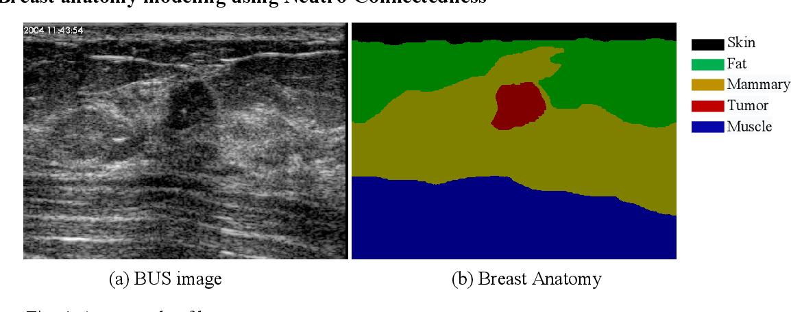 Figure 4 for Tumor Saliency Estimation for Breast Ultrasound Images via Breast Anatomy Modeling