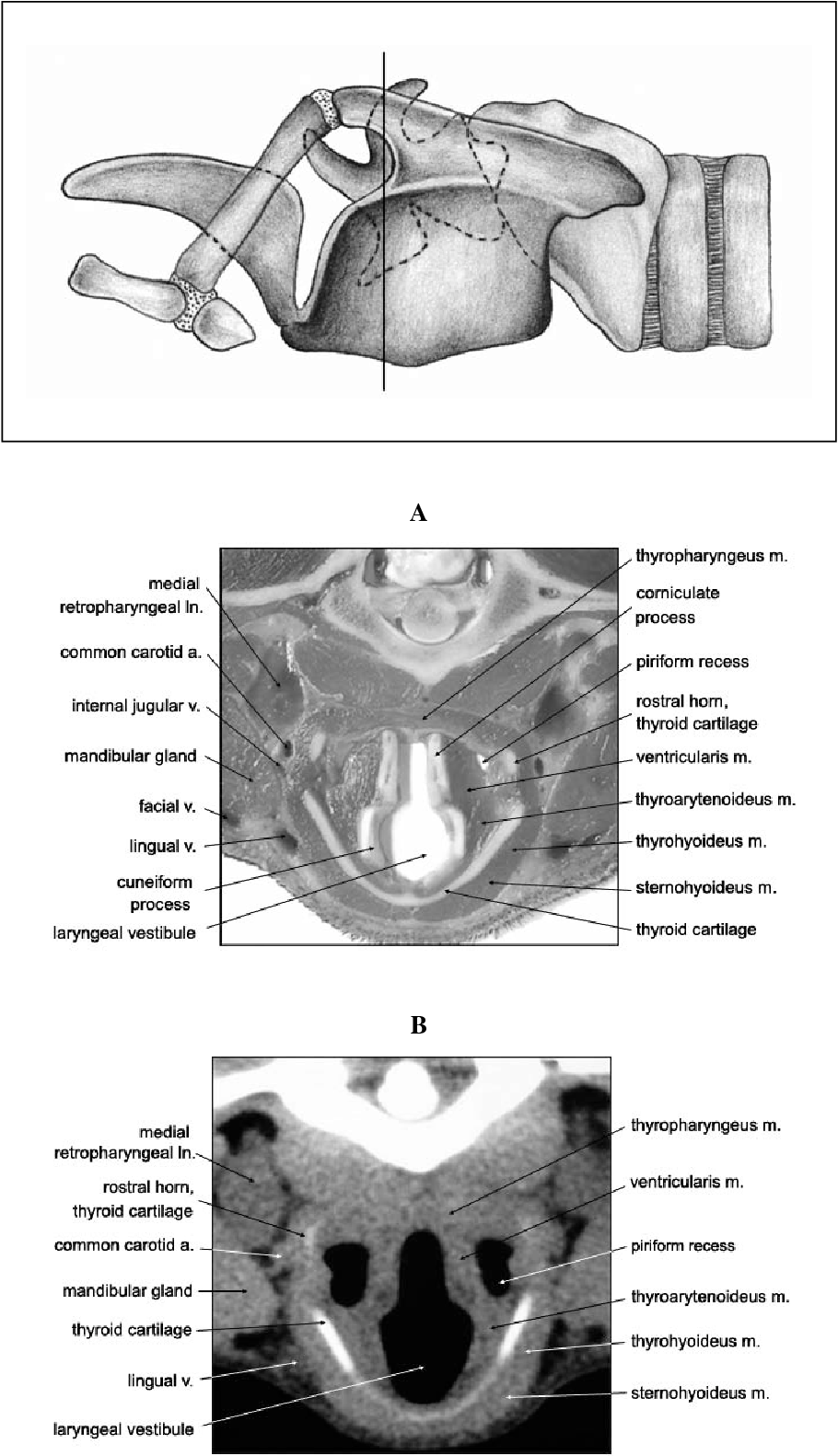 Figure 4 From Computed Tomographic Anatomy Of The Larynx In