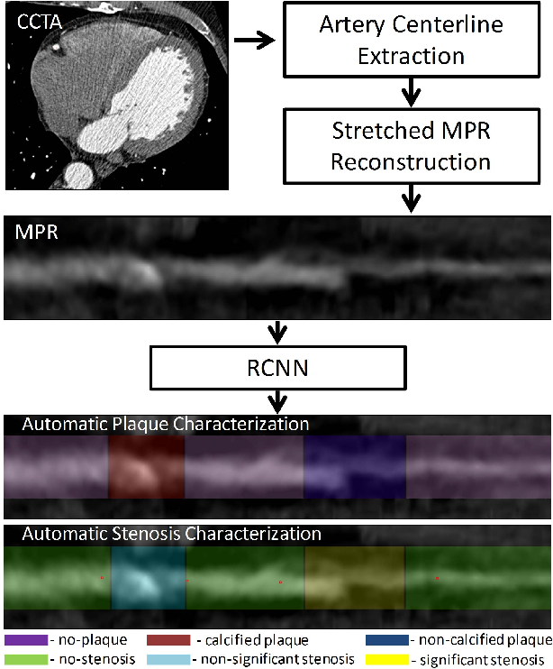 Figure 2 for A Recurrent CNN for Automatic Detection and Classification of Coronary Artery Plaque and Stenosis in Coronary CT Angiography