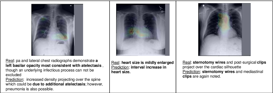 Figure 3 for Learning Visual-Semantic Embeddings for Reporting Abnormal Findings on Chest X-rays