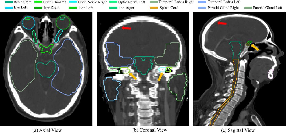 Figure 1 for Automatic Segmentation of Organs-at-Risk from Head-and-Neck CT using Separable Convolutional Neural Network with Hard-Region-Weighted Loss