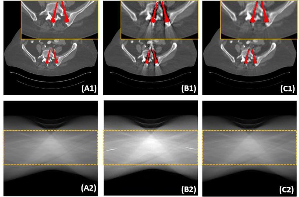 Figure 2 for DAN-Net: Dual-Domain Adaptive-Scaling Non-local Network for CT Metal Artifact Reduction