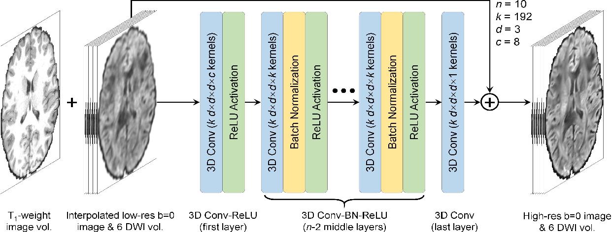 Figure 1 for SRDTI: Deep learning-based super-resolution for diffusion tensor MRI
