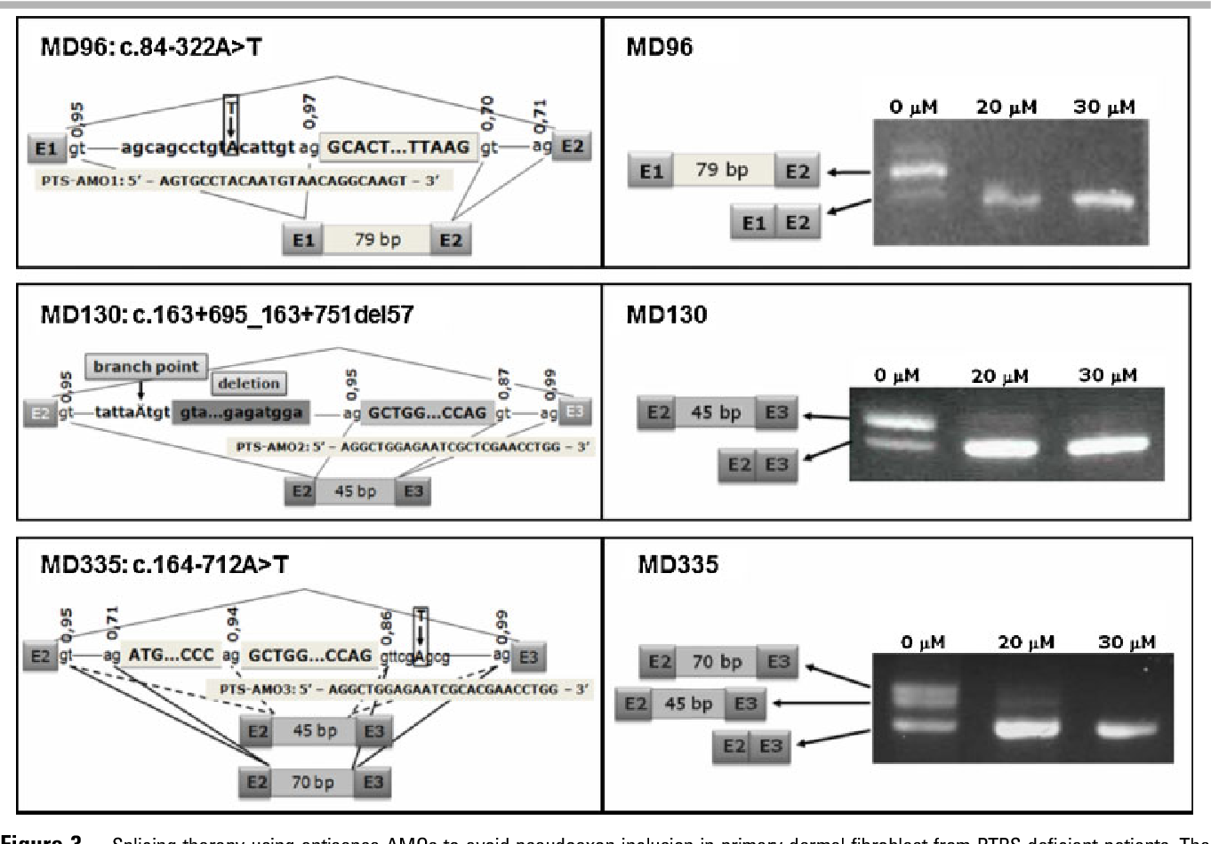 Pseudoexon exclusion by antisense therapy in 6-pyruvoyl