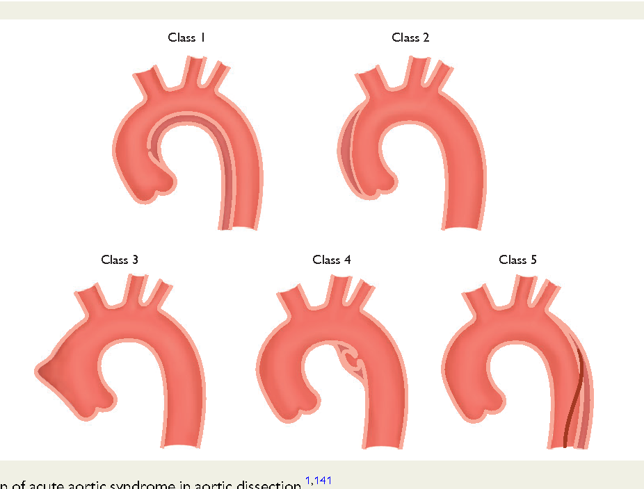 Figure 5 Classification of acute aortic syndrome in aortic dissection.1,141 Class 1: Classic AD with true and FL with or without communication between the two lumina. Class 2: Intramural haematoma. Class 3: Subtle or discrete AD with bulging of the aortic wall. Class 4: Ulceration of aortic plaque following plaque rupture. Class 5: Iatrogenic or traumatic AD, illustrated by a catheterinduced separation of the intima.