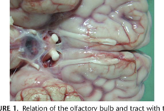Microsurgical anatomy for intraoperative preservation of the ...